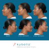 Kybella™ Before & After 1